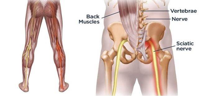 posición del nervio ciático en el pie